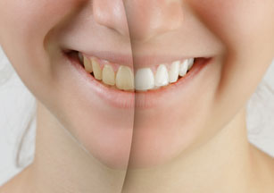 cosmetic dentistry dentist Scottsbluff