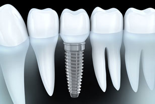 dental implant myths dentist Scottsbluff