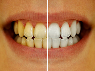 Teeth Whitening Scottsbluff NE